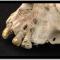 Esisteva veramente l'Odontoiatria nell'antichità?