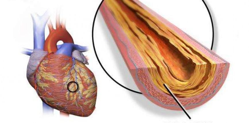 Non è il Grasso ad Ostruire le Arterie