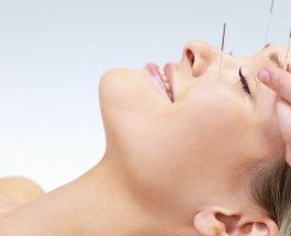 Agopuntura, che cosa può curare Veramente?