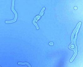 Miodesopsie – Ecco cosa sono quelle Strane Cose che vedi galleggiare davanti ai tuoi Occhi