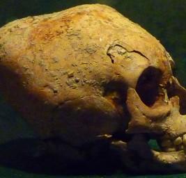 Deformazioni Craniche – Antichi Culti?
